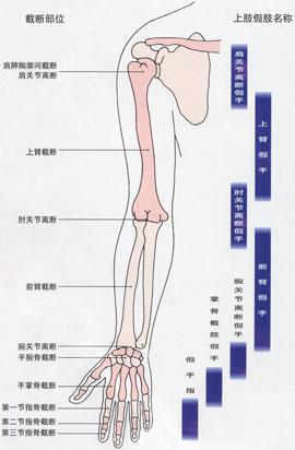 从结构上分为骨骼式和壳式