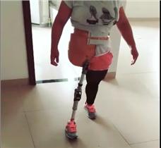 髋离断假肢大腿假肢视频