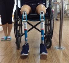 极短残肢大腿假肢康复训练