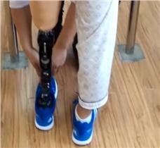 湖南佳满智能假肢安装调试视频