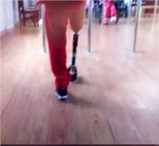 老年人(女)初装大腿假肢第一天康复训练视频