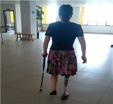 右大腿假肢美女康复训练视频