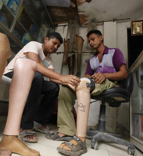 东南亚贫困国家的手工作坊假肢