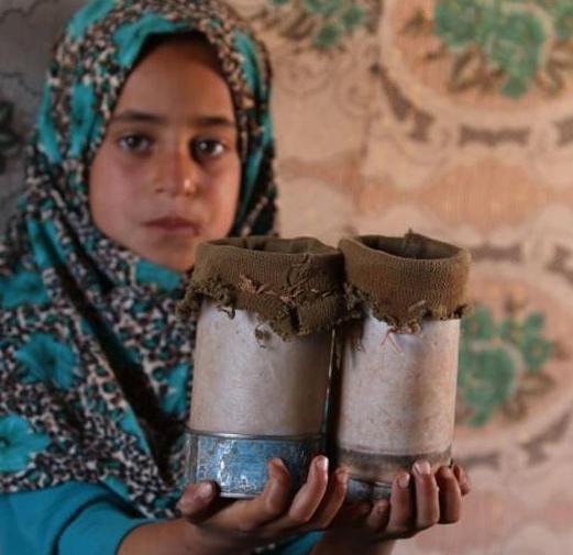 叙利亚难民女孩的假肢   让人心酸