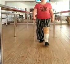 坚持才有结果   看美女小腿假肢康复视频