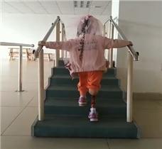 小女孩大腿假肢康复训练