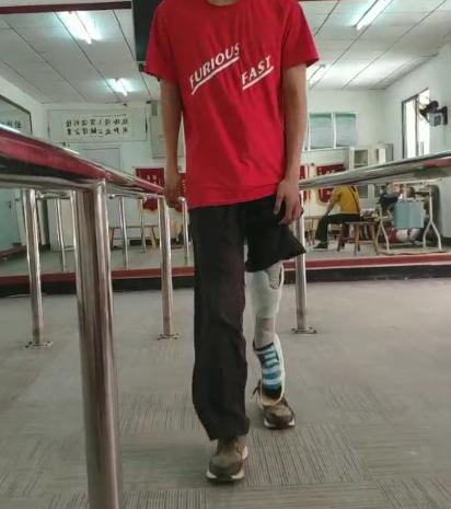 小伙装上了他的特殊假肢|佳满假肢
