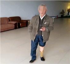 70多岁老人小腿假肢
