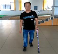 男右大腿假肢康复训练