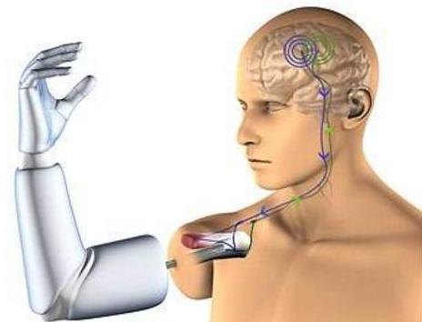 大脑来控制假肢   你觉得如何?