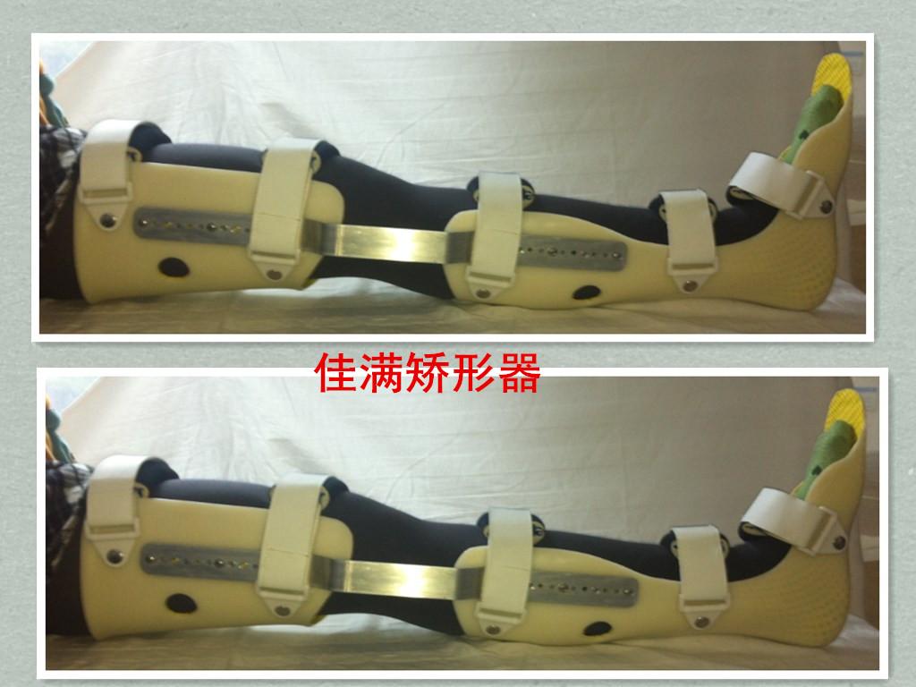 JM543组件式膝踝足固定矫形器