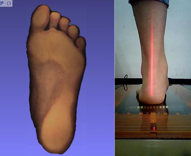 足踝健康检测