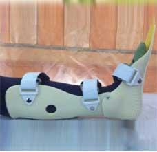 JM463塑料动态踝足矫形器