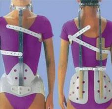 密尔沃基脊柱侧弯矫形器