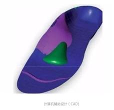 定制矫形鞋垫的介绍