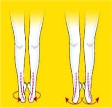 症状:八字脚