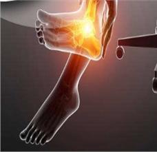 症状:足部疼痛