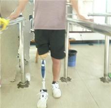 右小腿假肢装配案例