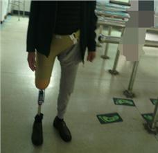 右大腿假肢装配案例