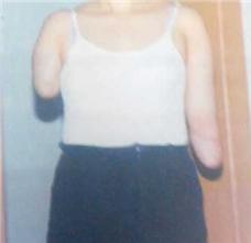 上肢假肢装配案例:双臂上肢假肢装配